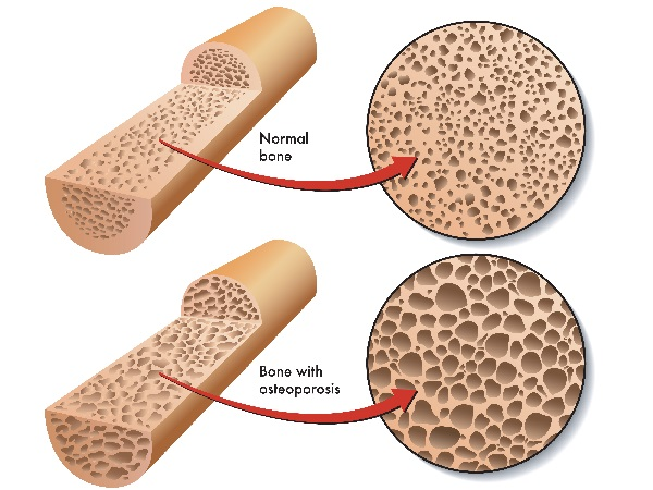 Osteoporosis and Calcium Toxicity