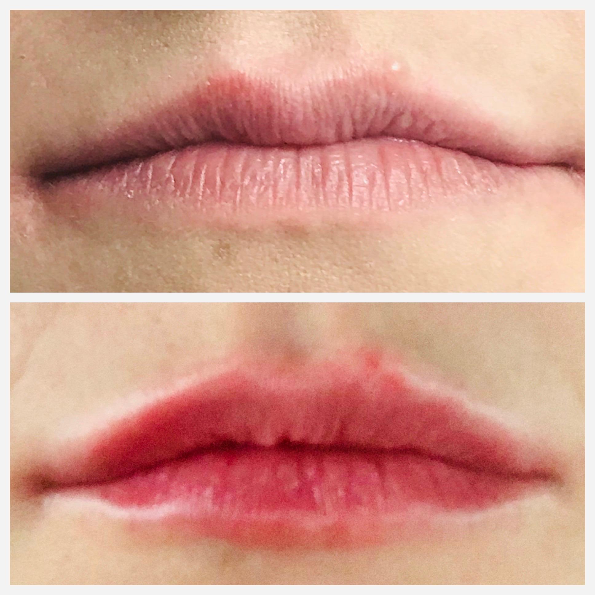 Lips, I syringe Juvederm Vollure