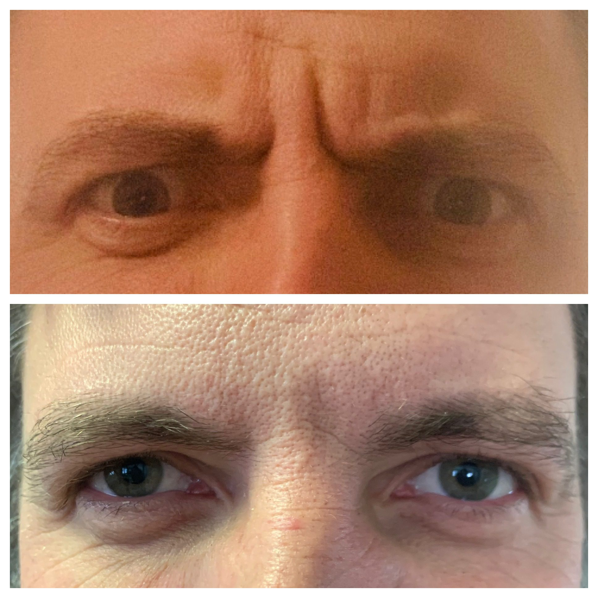 Botox - 1 week after injections