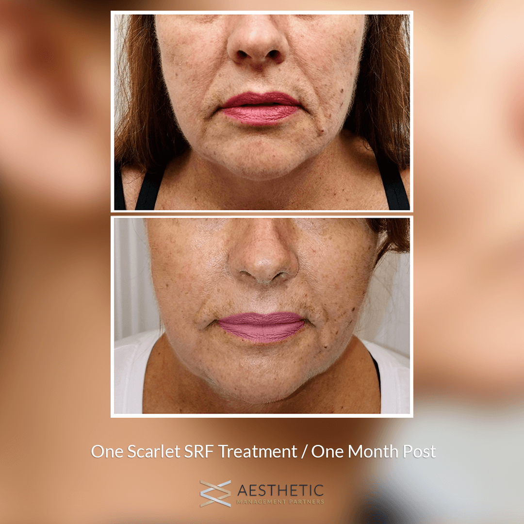 Scarlet Instant Face Lift Before & After Picture
