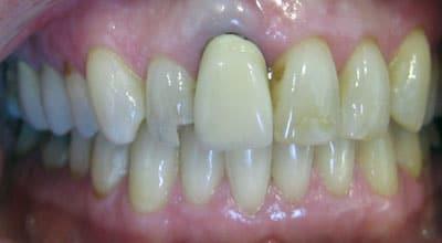 Restorative Dentistry Example