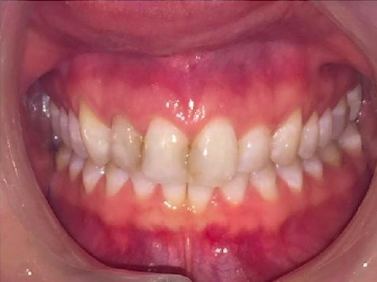 Cosmetic Dentistry Example