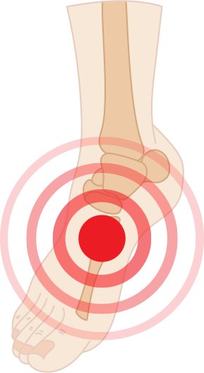 Diabetic Foot Pain