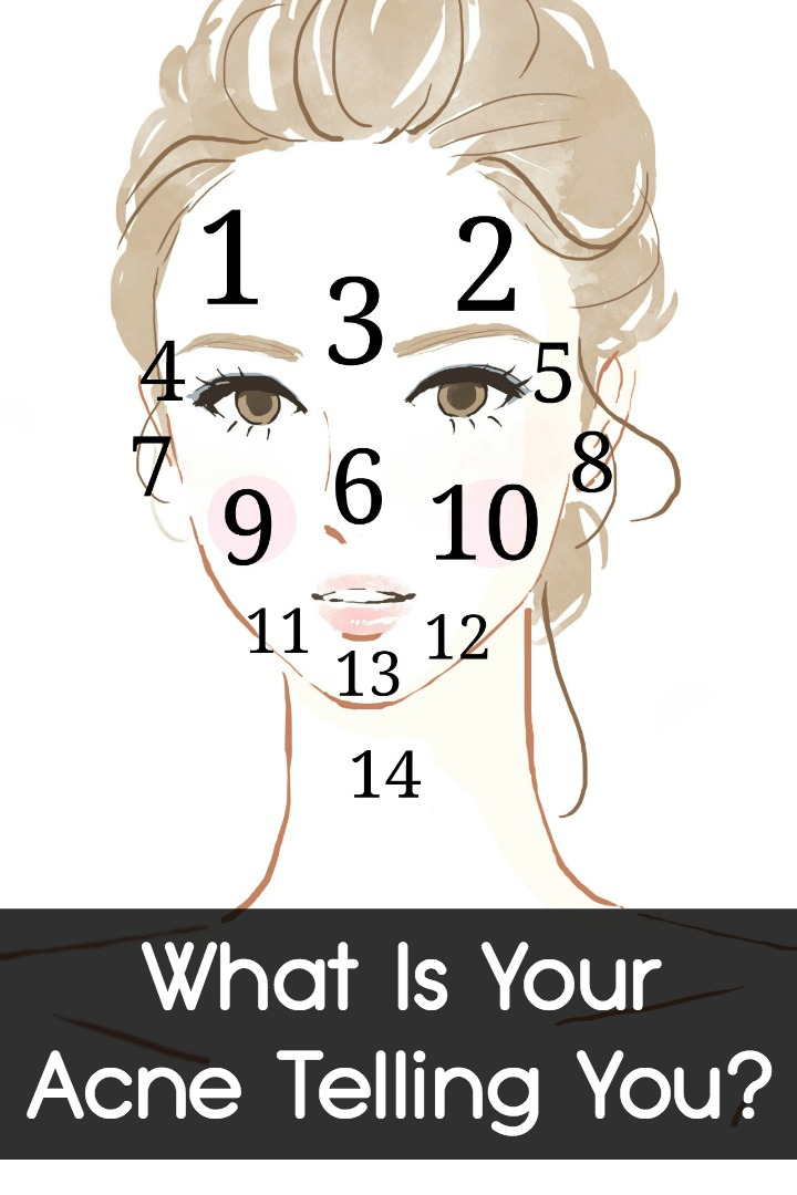 What Is Your Acne Telling You -