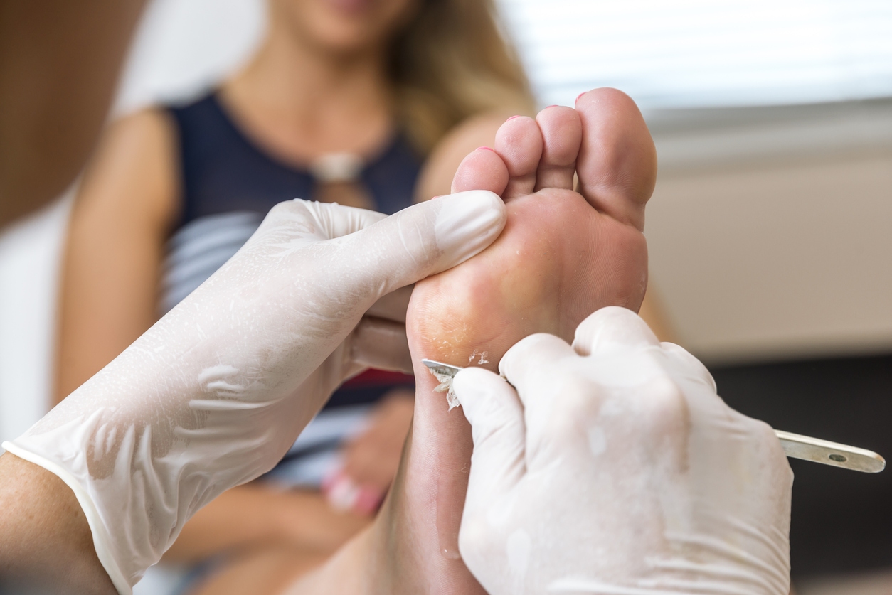 Chiropodist removes skin on a wart