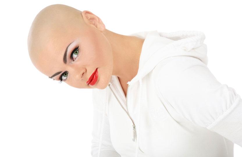 alopecia hair loss before
