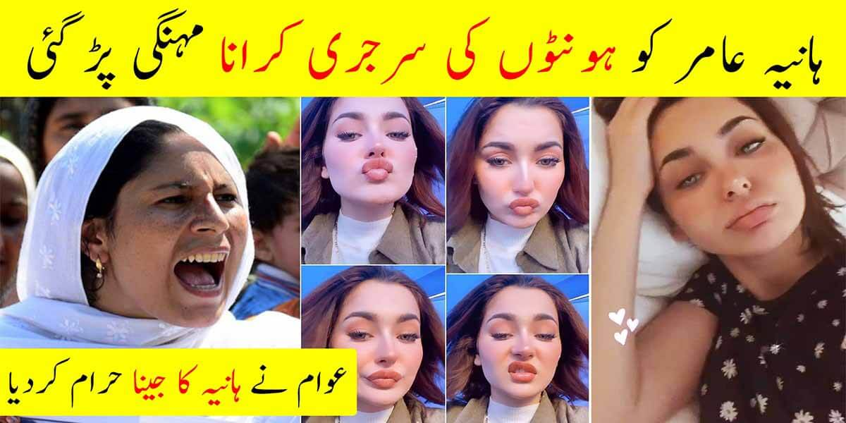 Hania Amir Lip Surgery gone wrong