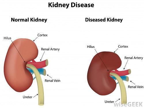 labeled-illustration-of-kidney-disease