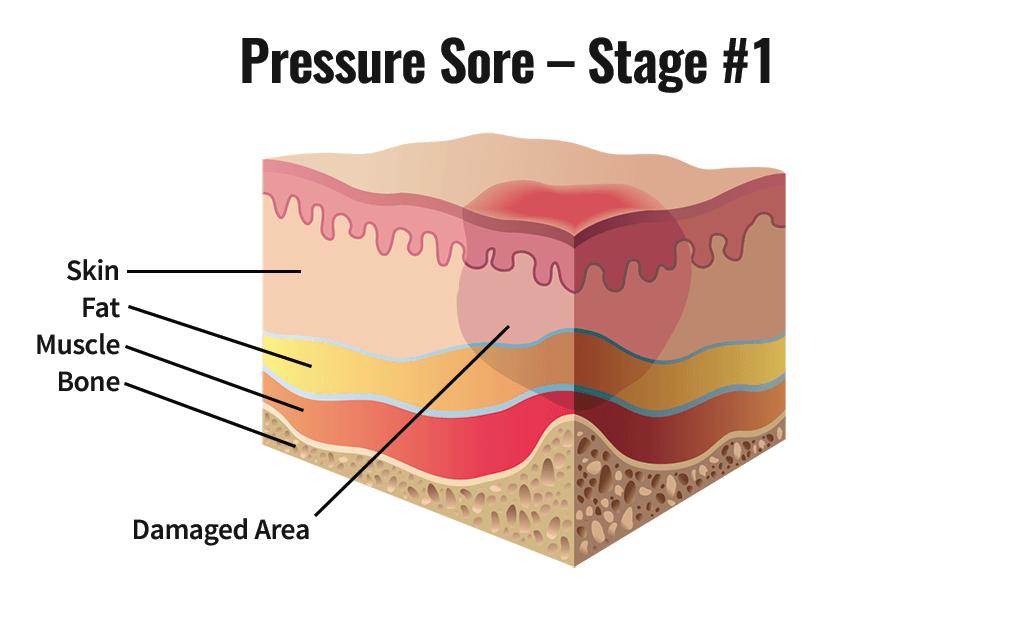 Stage One Pressure Sore