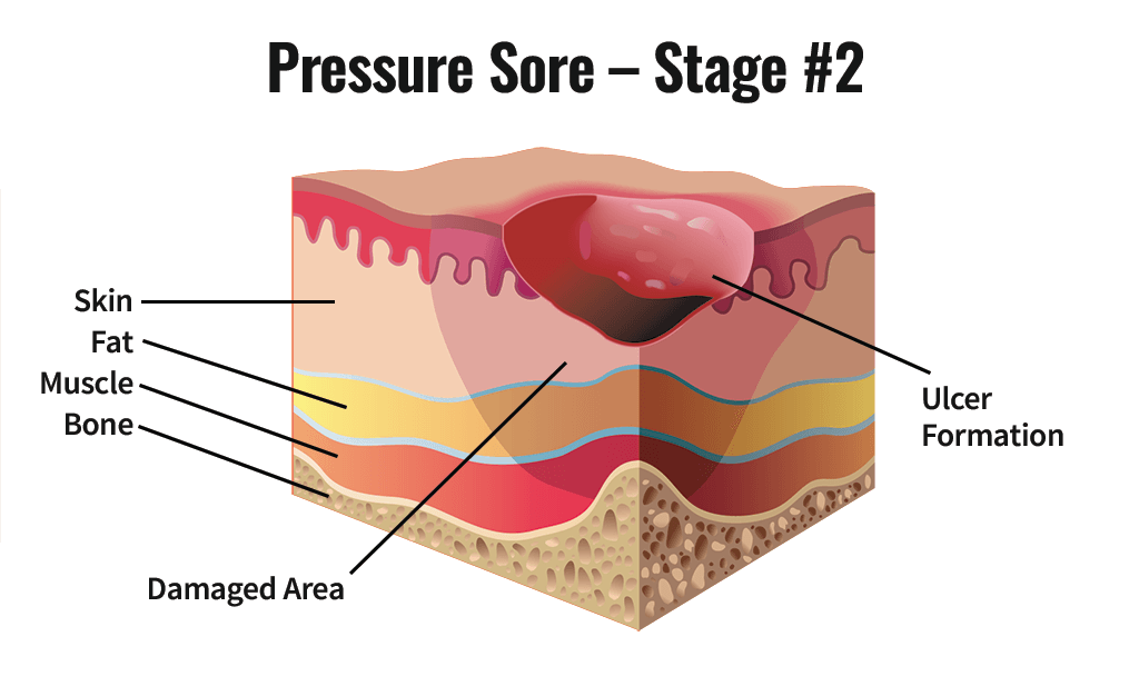 Stage Two Pressure Sore
