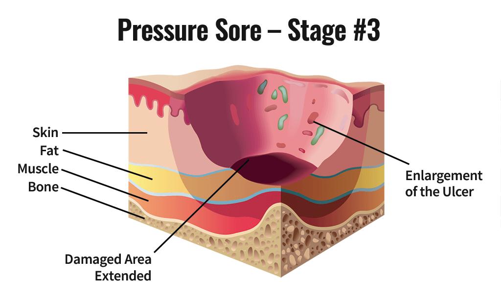 Stage Three Pressure Sore
