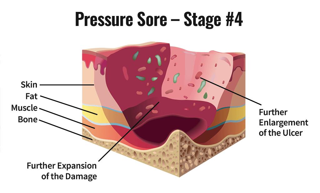 Stage Four Pressure Sore