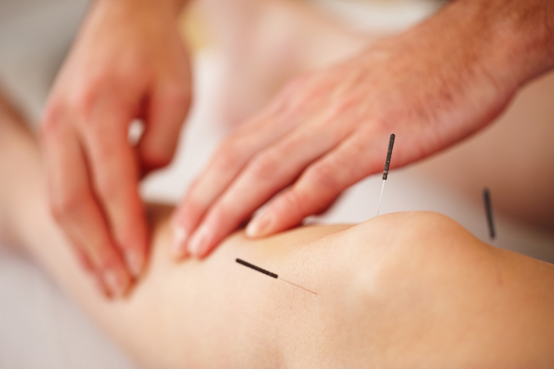acupuncture, dry, needling IMS, sport, Village, Physio