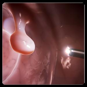 colonoscopy example