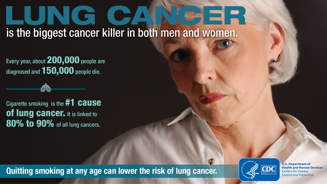Lung Cancer Facts from the CDC
