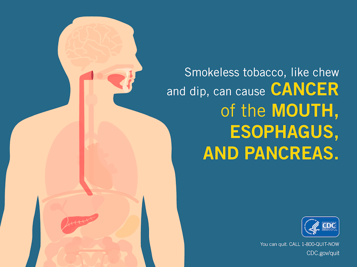 Smokeless Tobacco Dangers