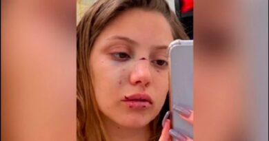 Desfiguran la cara con una hielera a Joven que fue confundida con otra persona en una discoteca
