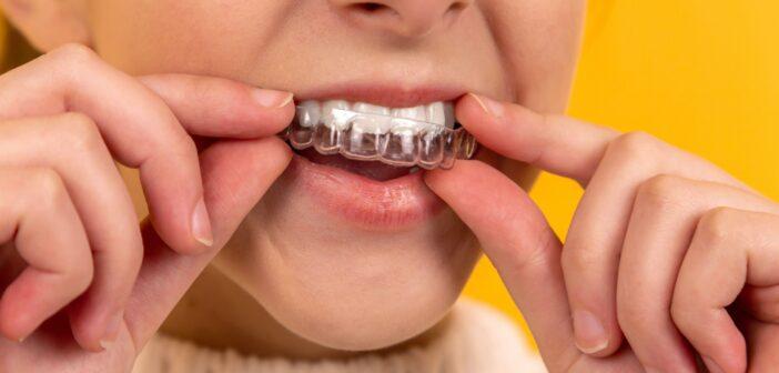 Marvelous Mouth: Subtle Ways To Solve Common Oral Problems