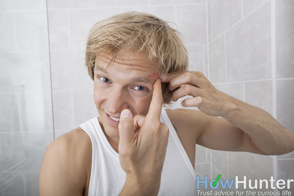 10 ways to get rid of zits overnight fast
