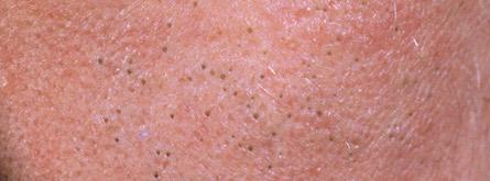 remove blackheads on forehead
