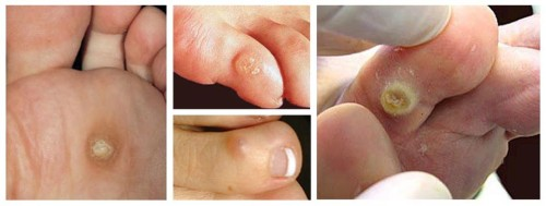 how to get rid of corns on your toes