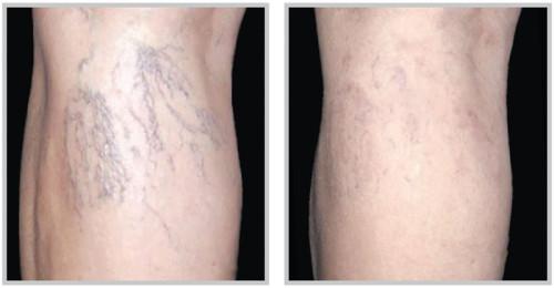 get rid of spider veins on legs