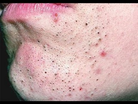 remove deep blackheads on chin