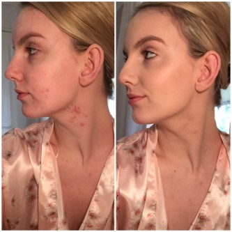 hormonal imbalance acne