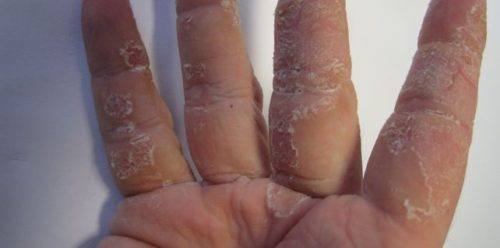 extremely dry skin on hands