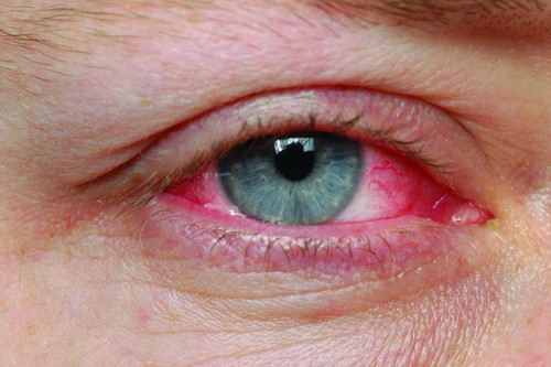 pink eye pictures