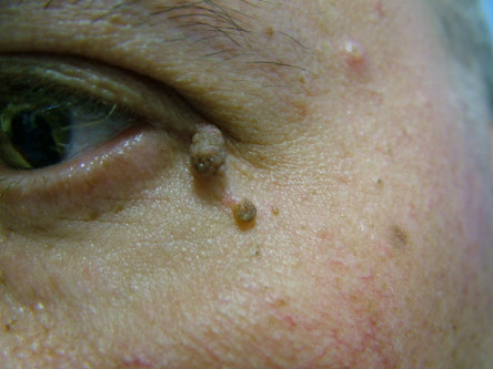 skin tags on face pictures