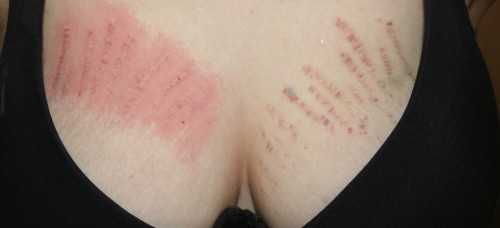 stretch marks on breasts pictures