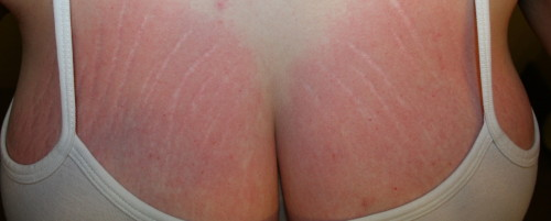 get rid of stretch marks on breasts
