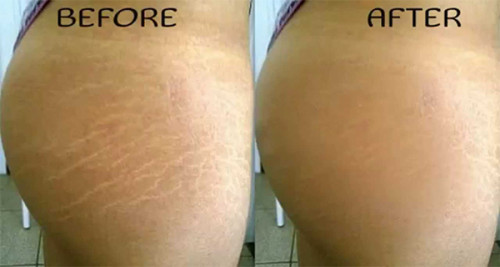 get rid of stretch marks on thighs