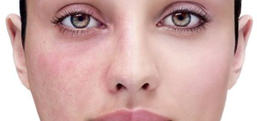 Red Spots on Face