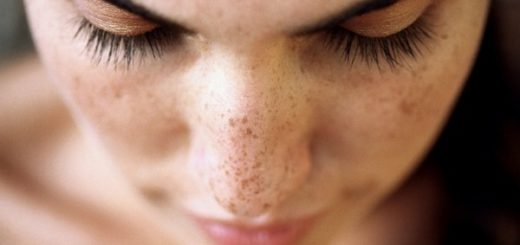 blemishes on your face