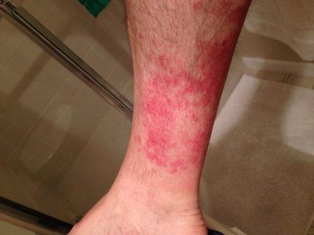 rash on legs pictures