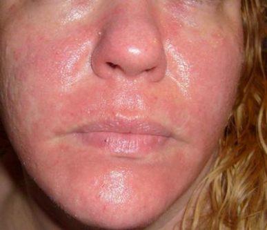 rash on your face