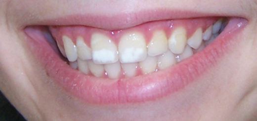teeth white spots