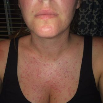 get rid of folliculitis