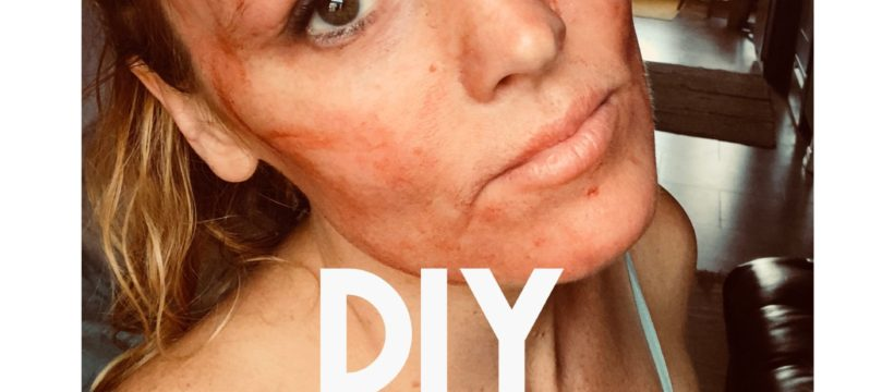 DIY Vampire facial