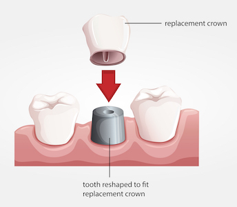 Illustration of a dental crown and how it fits over the existing tooth.