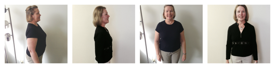 Sharon R Before and After Ideal Doctors Weight Loss