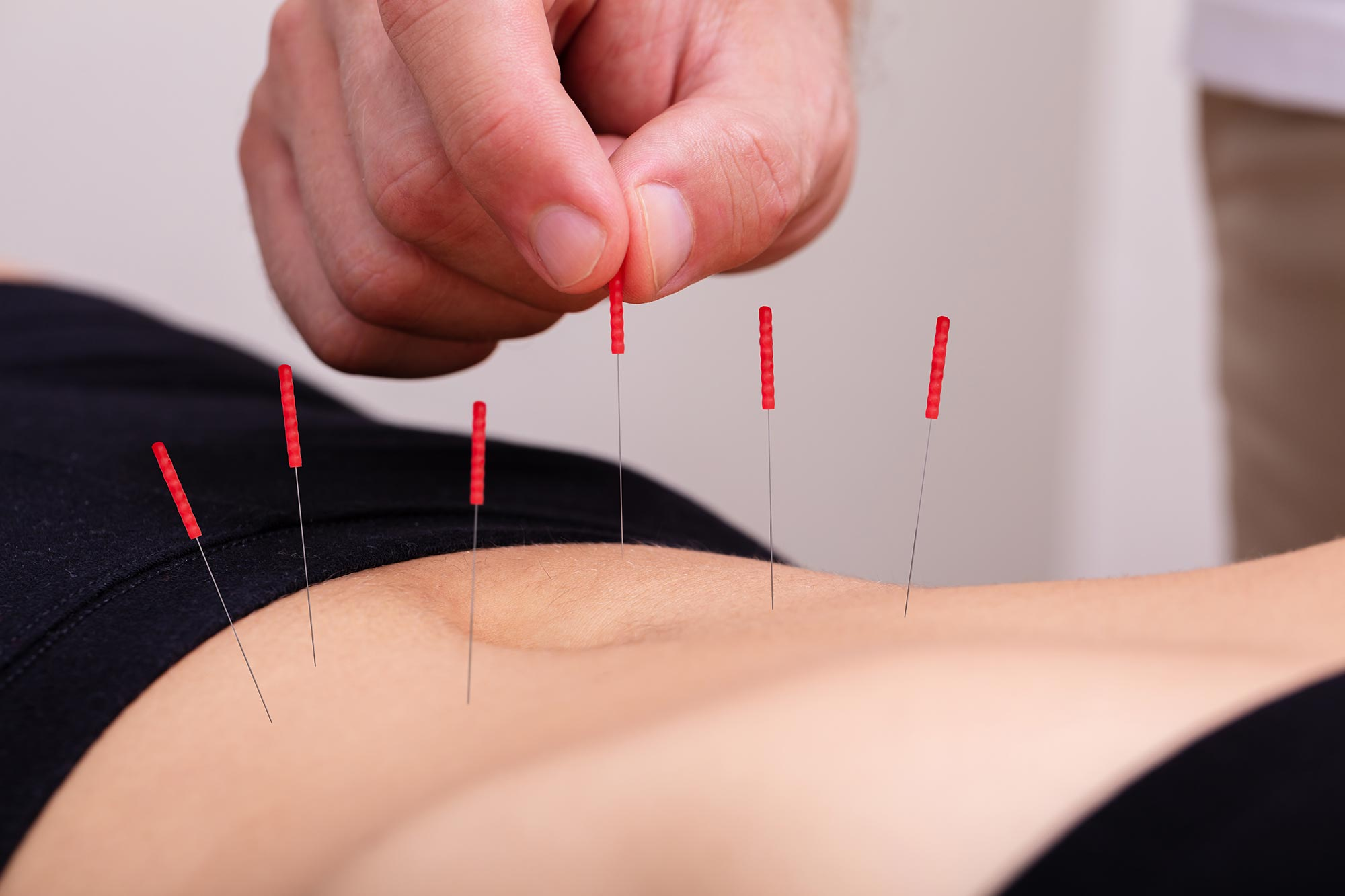 Acupuncture-Treatment-Belly