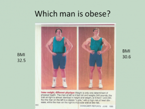 Obese?