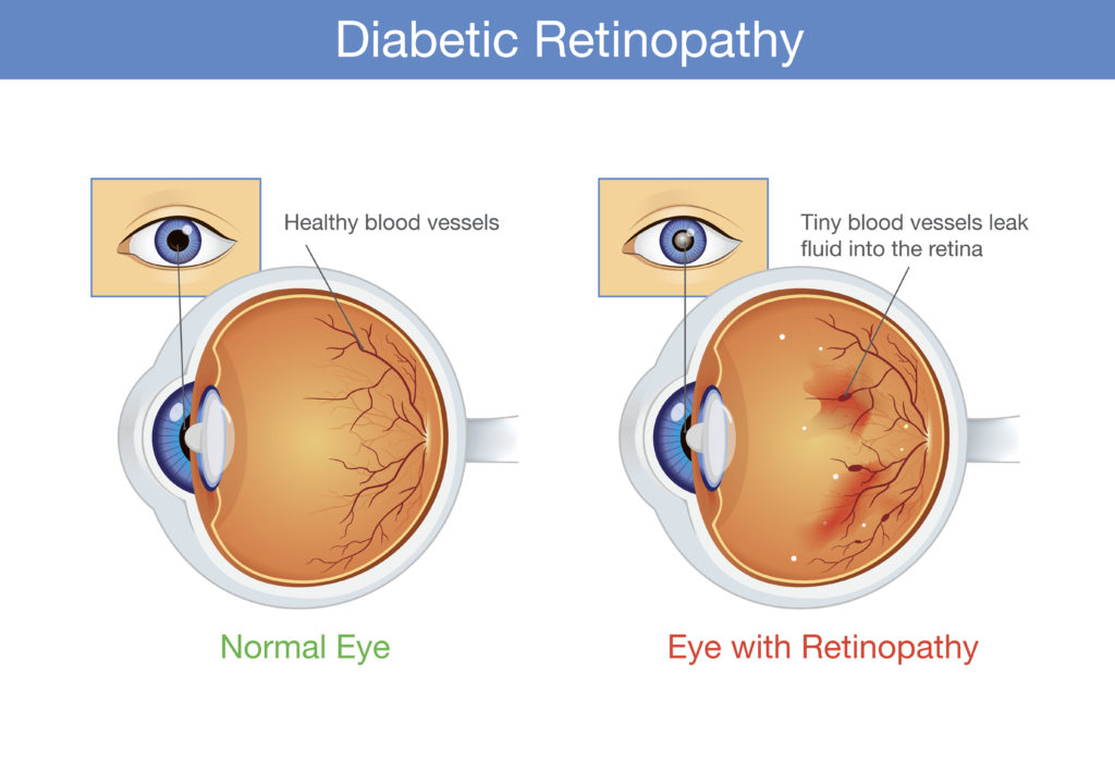 Anatomy of normal eye and Diabetic retinopathy in people who have diabetes. Illustration about health and eyesight.