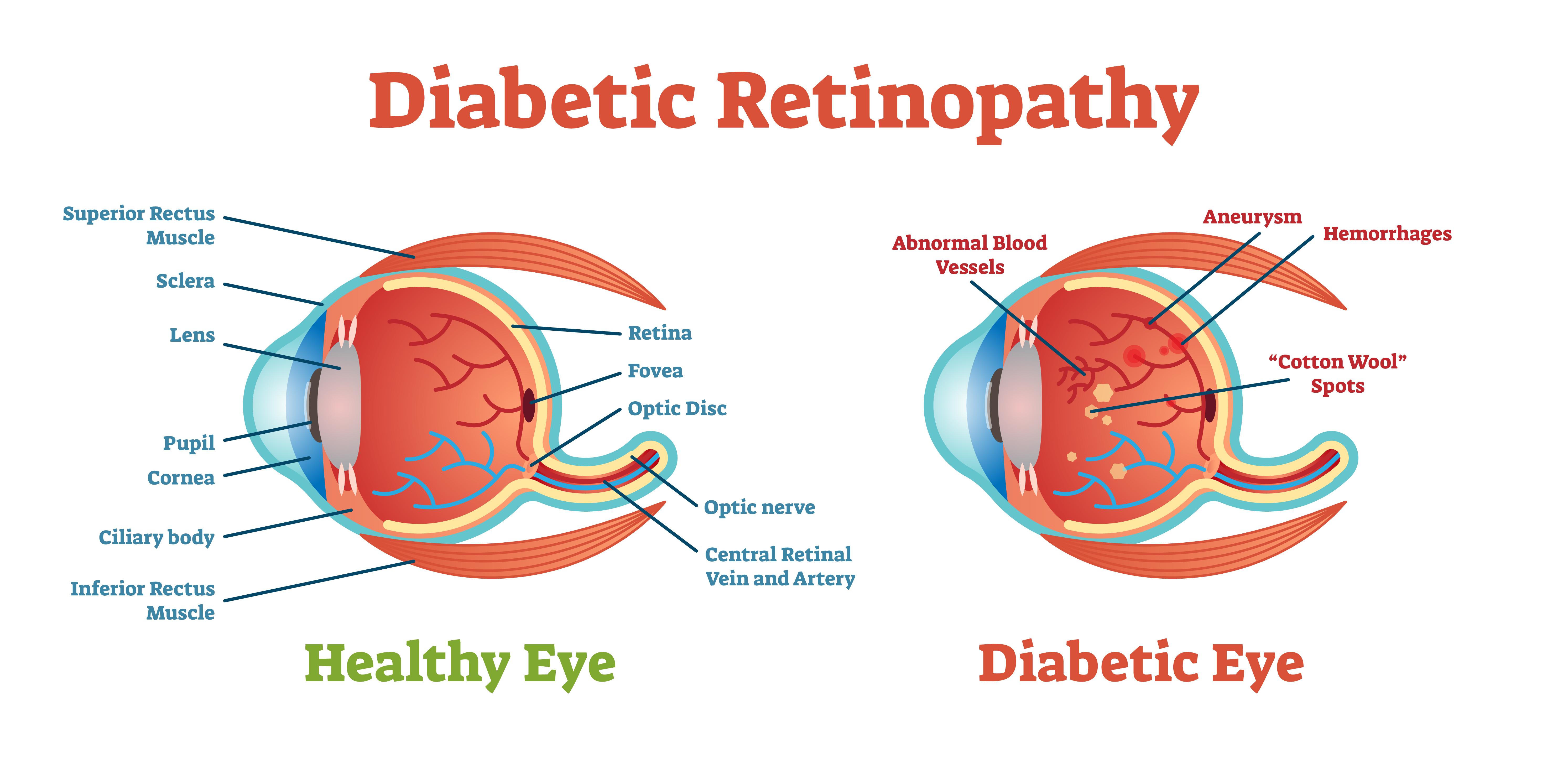 Diabetic Retinopathy vector illustration diagram, anatomical scheme. Medical educational information.