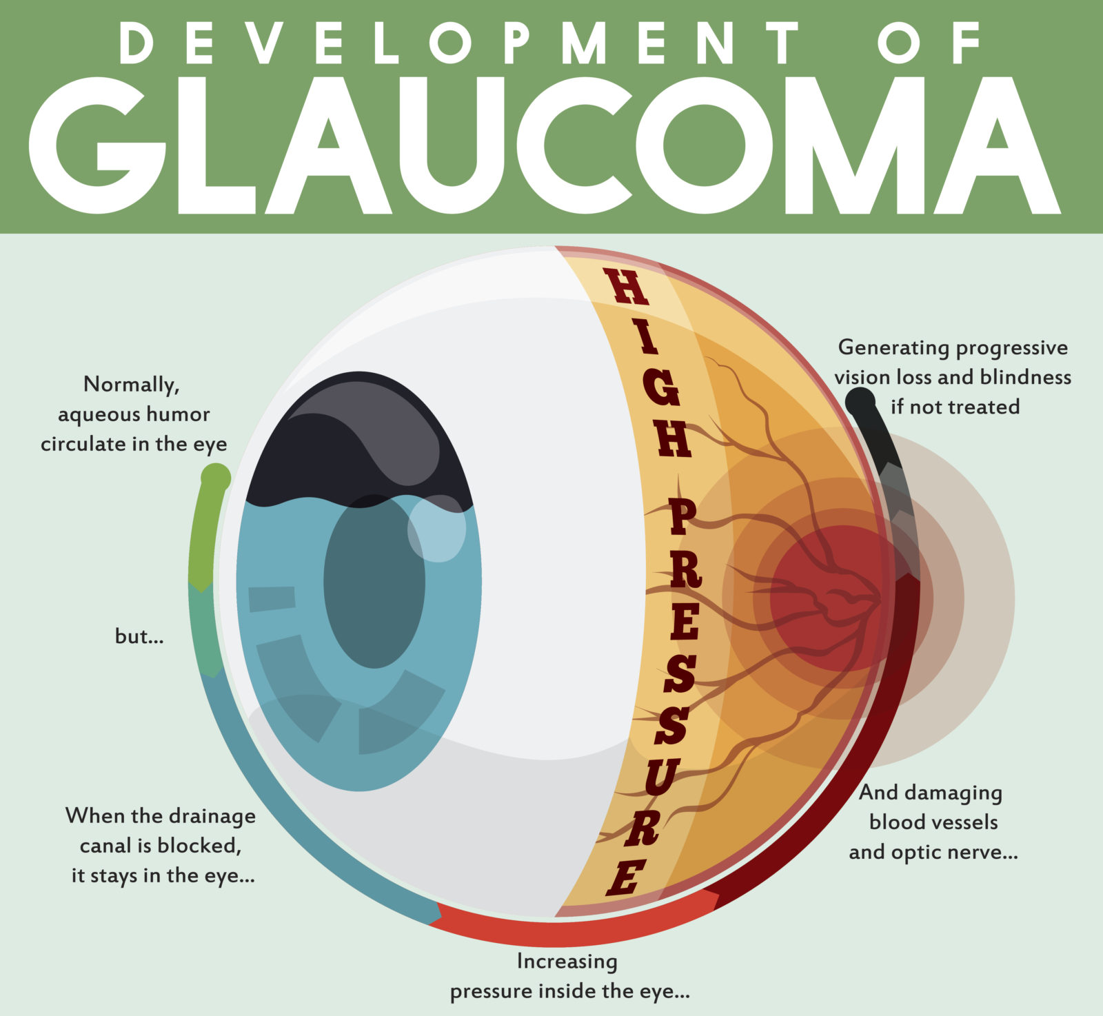 Infographic poster with detailed effects of untreated glaucoma disease showing the passing through a good and healthy eye to a progressive vision loss.