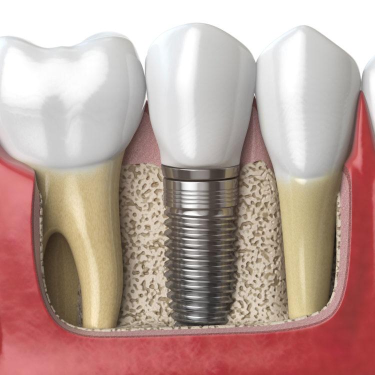 bone grafting roanoke oral surgery