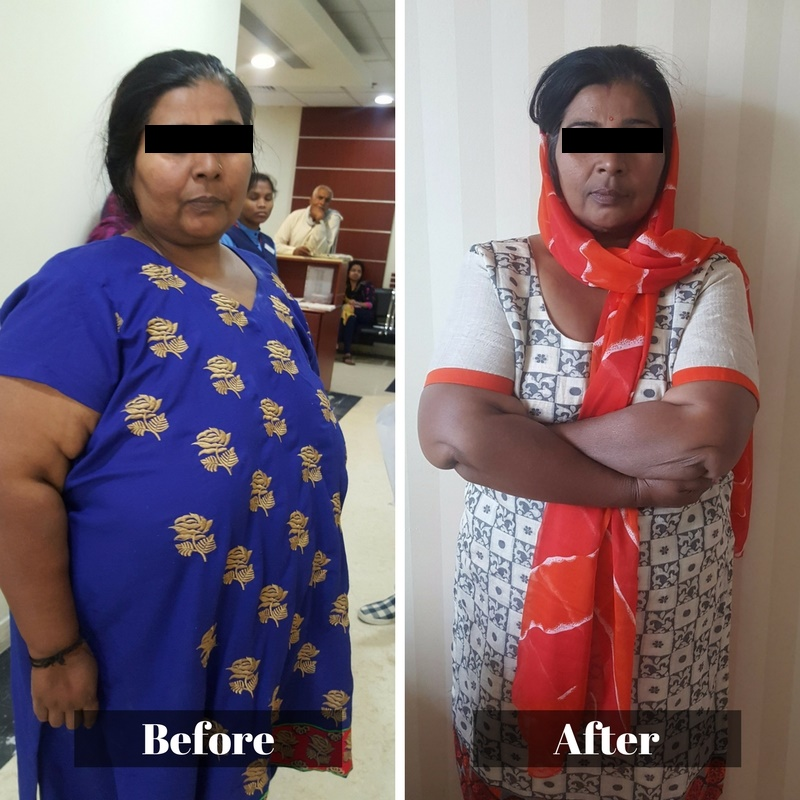 Bariatric Surgery Before and After